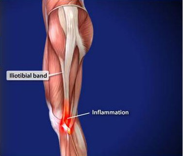 Iliotibial-Band-Syndrome-(ITBS)