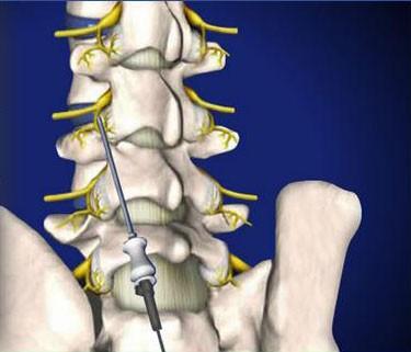 Lumbar-Radiofrequency-Neurotomy
