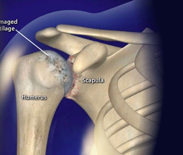 Rheumatoid Arthritis (RA) of the Shoulder