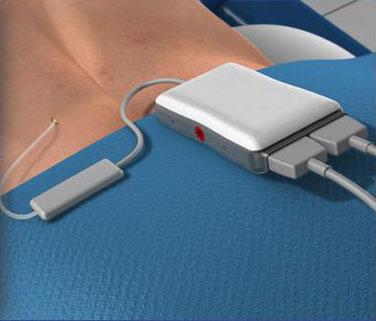 Spinal-Cord-Stimulator-Implant-(Trial-Procedure)