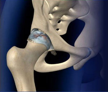Fluoroscopic Guided Hip Injection