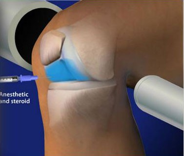 Fluoroscopic Guided Steroid Injection – Knee Pain