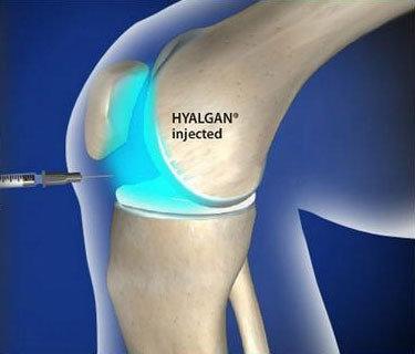 HYALGAN® Injection for Knee Pain (Fluoroscopic Guided)