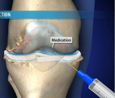 Visco-supplementation for Arthritis of the Knee