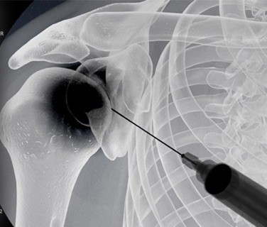 Joint Injection Shoulder